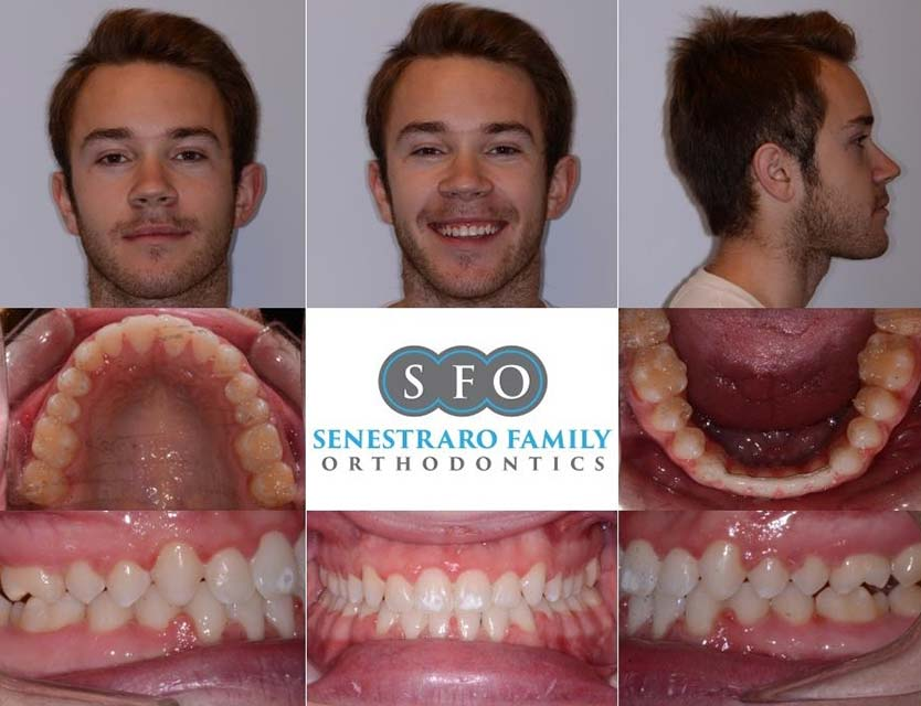After smile Jaw & Orthognathic Surgery