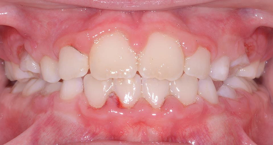 After smile Phase1 & Early Treatment